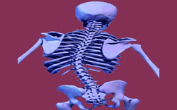 Scoliosis Spinal Curvature