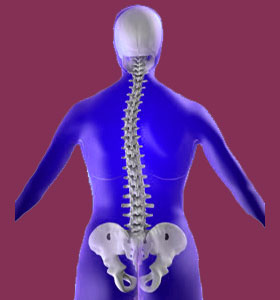 Scoliosis Products