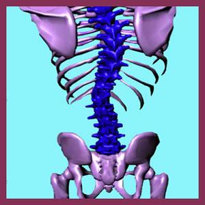 Scoliosis Symptoms