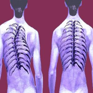 C Curve Scoliosis