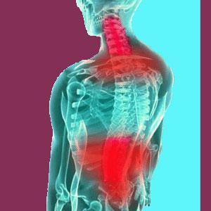 Cervicothoracolumbar scoliosis