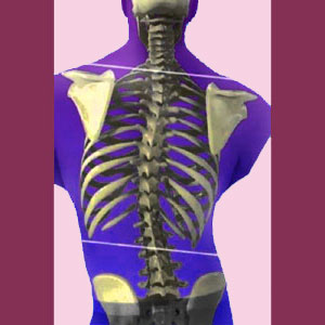 Chiropractic for Scoliosis