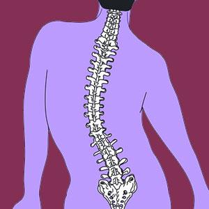 Consequences of Scoliosis