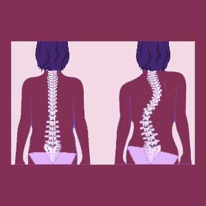 Double Scoliosis