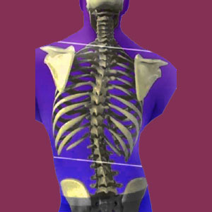 Fixed Scoliosis