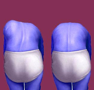 Juvenile scoliosis