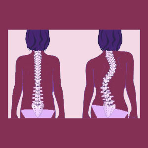 Nonstructural Scoliosis