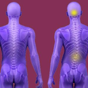 Psychosomatic Scoliosis Pain