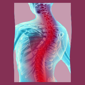 Scoliosis Affecting Heart