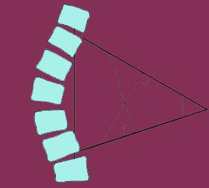 Scoliosis Cobb angle