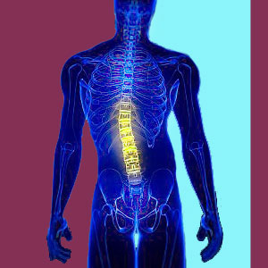 Scoliosis Disability