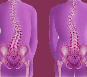 scoliosis facts
