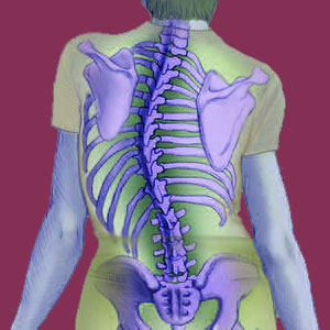 Scoliosis from Spinal Syrinx