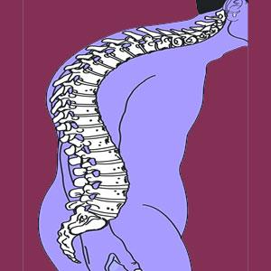 Scoliosis Hyperkyphosis