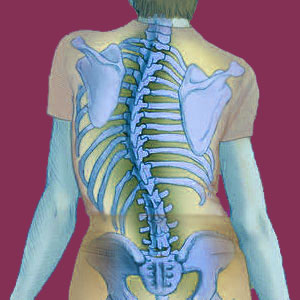 Scoliosis in the Elderly