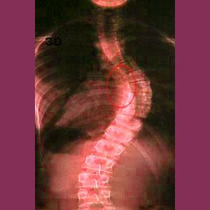 Scoliosis neuroforaminal stenosis