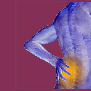 Scoliosis nocebo