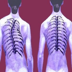 Scoliosis Regression