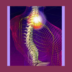 Tension Myositis Syndrome Scoliosis